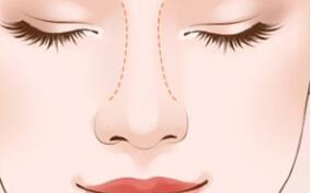 夏天做隆鼻手术需要注意哪些问题