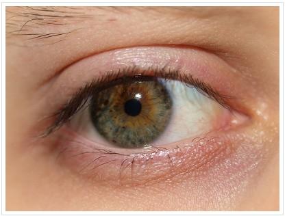开眼角术后有疤痕怎么办