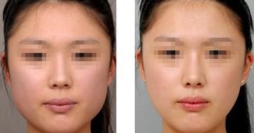 西安伊美尔肉毒素注射,精致脸型