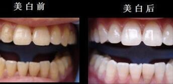 鹤壁美林苑牙齿美白案例