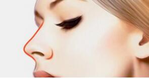 隆鼻后会出现哪些症状以及如何处理