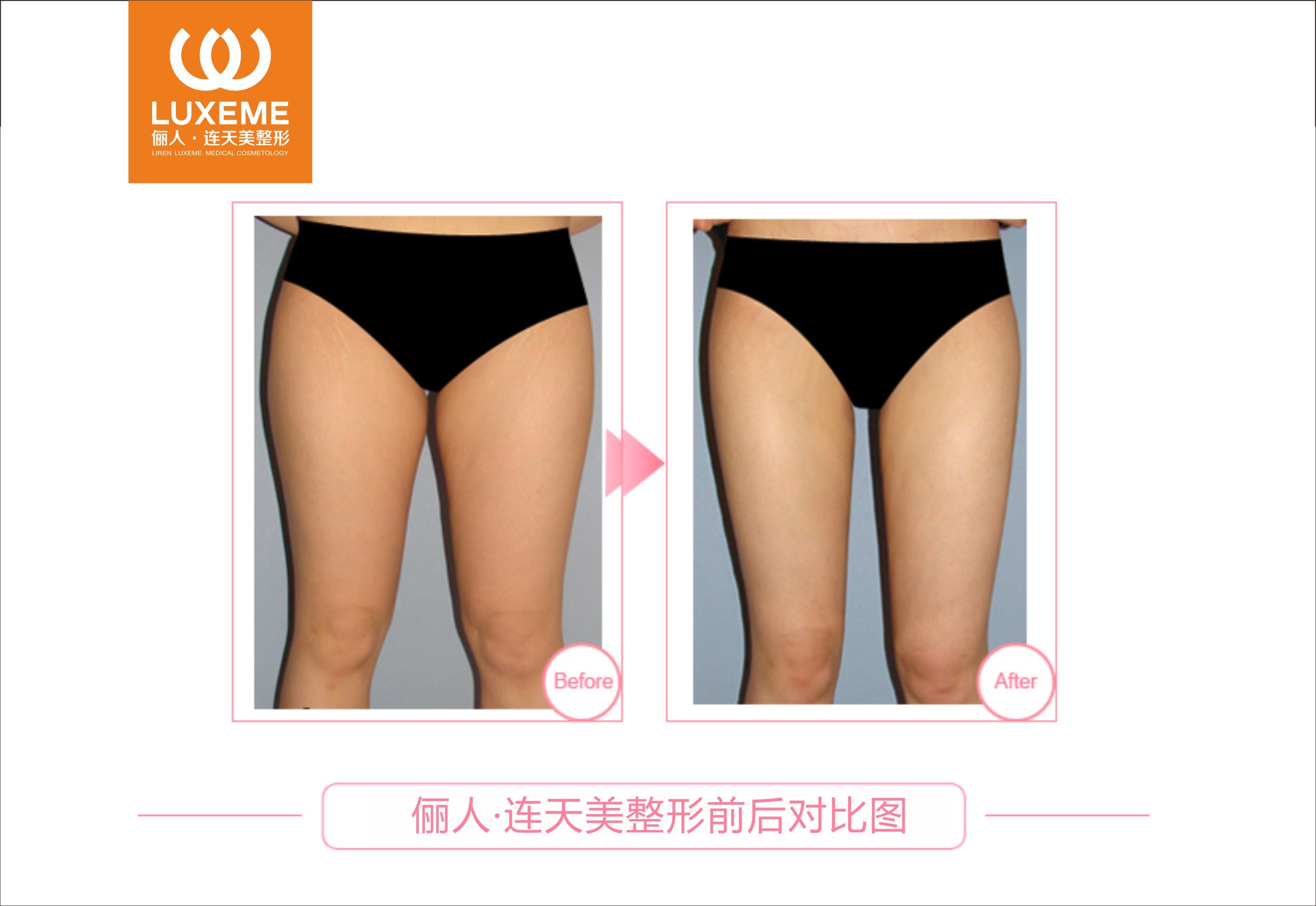 大腿吸脂成功案例,拥有瘦小大长腿