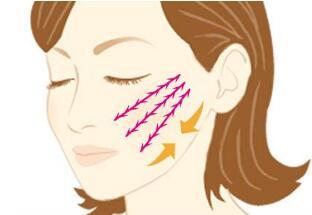 临沂瑞丽下颌角整形术前注意事项有哪些
