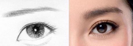 哪些人并不适合做三角眼矫正手术