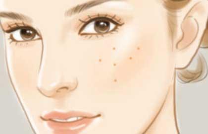 彩光嫩肤的优势有哪些