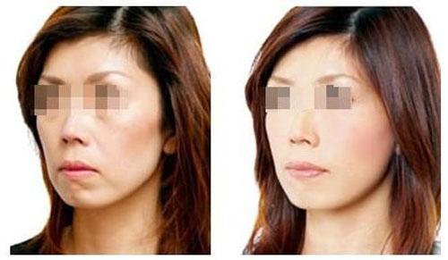 西安伊美尔玻尿酸除皱,恢复年轻容貌