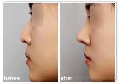 西安伊美尔综合鼻部整形,精致小韩鼻
