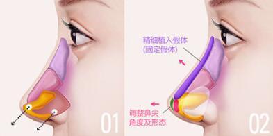 自体脂肪注射隆鼻是所有隆鼻材料中很好的一种吗