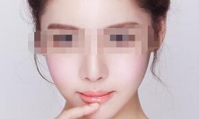 面部吸脂的3大优点