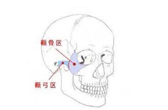 临沂瑞丽颧骨整形不会导致两侧高低不齐