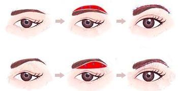 三角眼矫正的治疗有针对性吗
