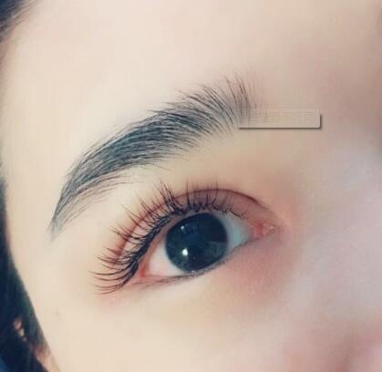大连美琳达双眼皮效果与三个方面有关