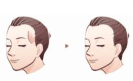 这几种类型需要面部注射物取出