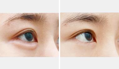 什么方法祛眼袋的效果理想呢