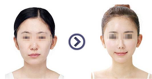 陕西友谊磨颧骨手术,拥有少女脸