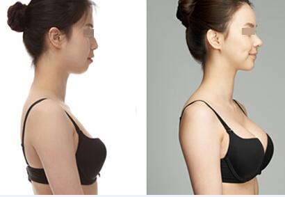 西安俪时代自体脂肪隆胸,完美胸型