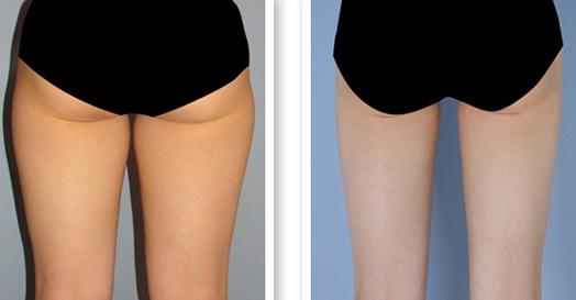 西安俪时代大腿吸脂,完美腿型
