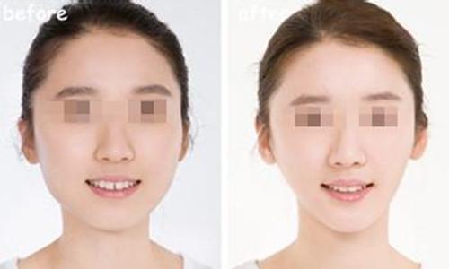 西安俪时代BOTOX瘦脸针,瘦脸神器