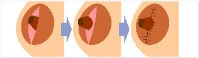 厦门海峡乳头凹陷矫正,拥有正常完好的乳头