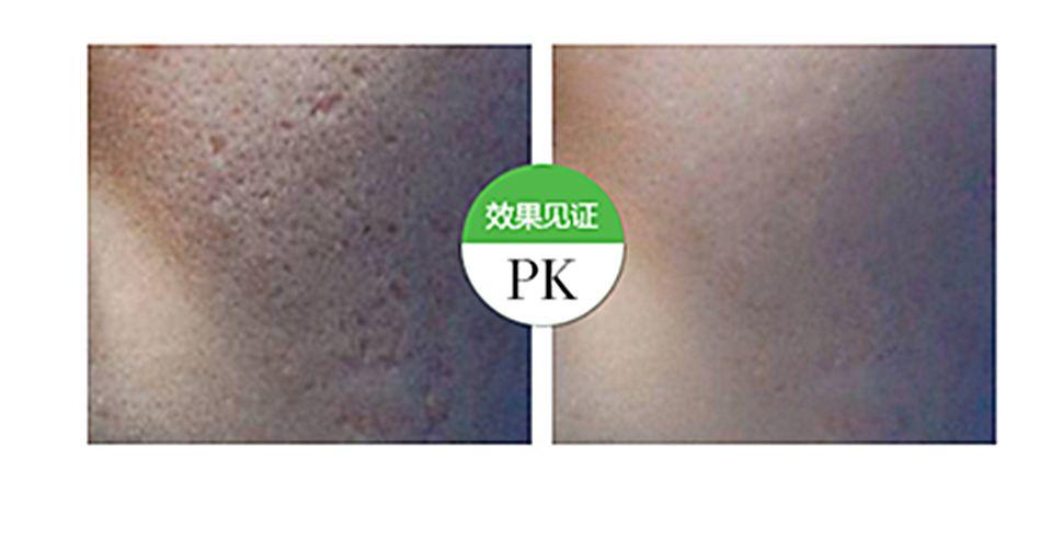 漳州美博士祛痘祛斑,斑痘消失肌膚變得緊致