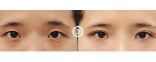 漳州美博士韓式電眼,眼睛變得秀氣大方