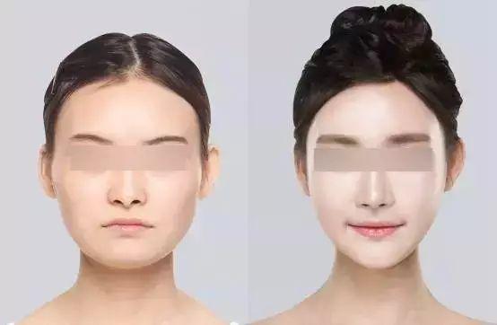 漳州美博士肉毒素注射,精致臉型顏值高
