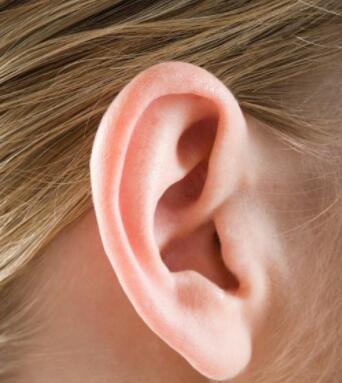 招风耳矫正需要一个月可恢复