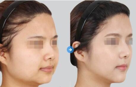 漳州美博士V臉提升,幫我擁有精致小V臉