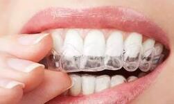 听说牙齿矫正是一项很简单的手术