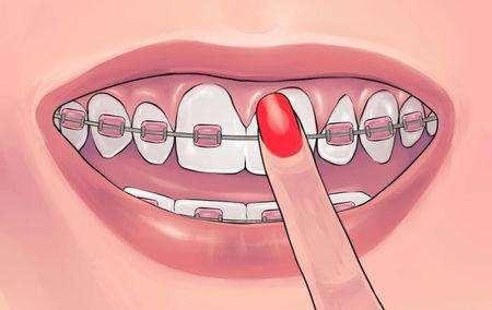 大连美琳达牙齿矫正饮食需注意什么