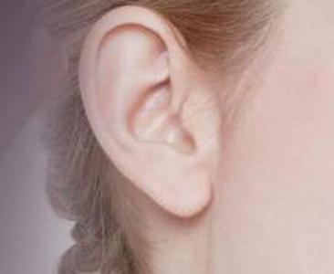 大连美琳达耳垂再造可塑造漂亮耳垂
