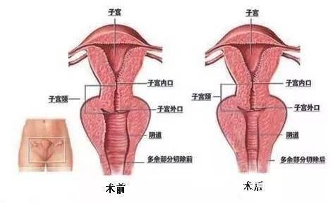 大连美琳达阴道紧缩有三大好处