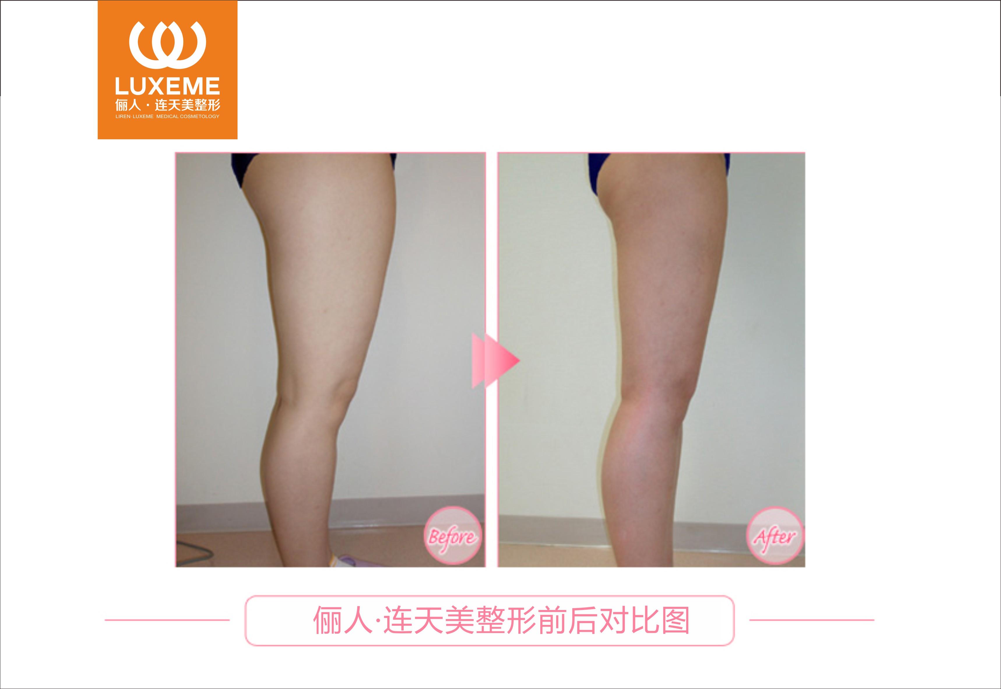 大腿吸脂成功案例,纤细瘦小大腿回头率高