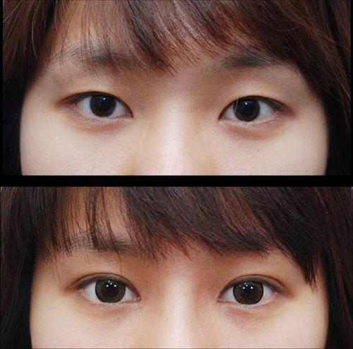 武汉同济医学院医院双眼皮,眼睛亮晶晶