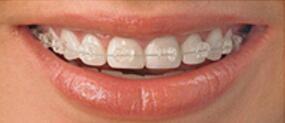 牙齿矫正怎样判断成功与否