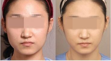 武汉同济医学院医院美国超声刀除皱,保持年轻的秘密