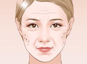 激光祛除老年斑的疗程