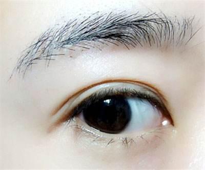 大连沙医生双眼皮手术具有四大类型