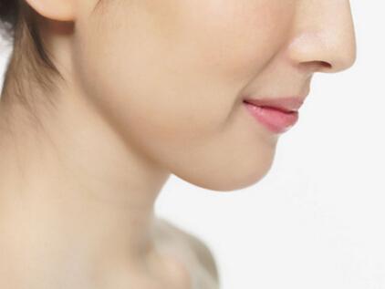 西安伊美尔下颌角整形手术恢复期是多长