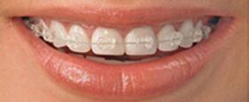 决定牙齿矫正时间长久的5个因素