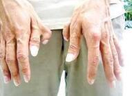 临沂瑞丽多指切除术必须要注意的4个细节