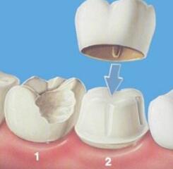 临沂瑞丽种植牙术后注意调理3种关系