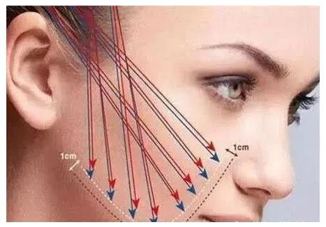 注射除皱和手术除皱,哪个更适合你