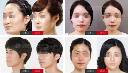 国内颅颌面整形技术带头人-何晋龙医师
