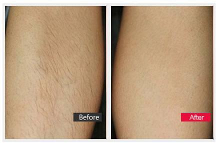 激光前臂脱毛3-5疗程达到效果