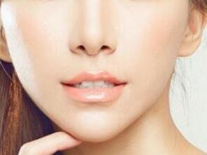台州长青鼻翼缩小术后MM在术后一个月之后化妆会更好一些