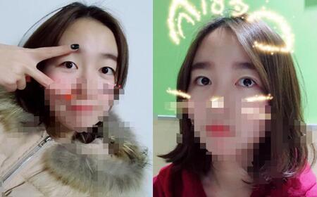 郑州艾伯丽双眼皮案例,双眼皮已经很自然了