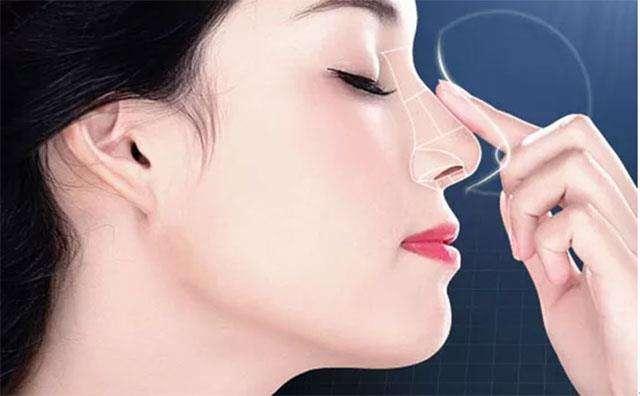 线雕隆鼻,山东德州价格需要8800-26800元