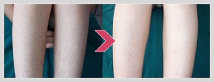 激光大小腿脱毛能保持多久