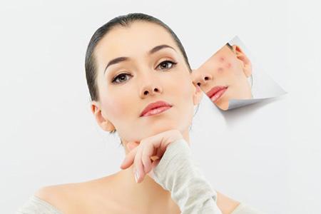 光子嫩肤能解决哪些皮肤问题